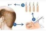 Способы трансплантации волос